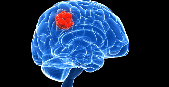 mobile phones and brain cancer